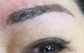 client eyebrow after